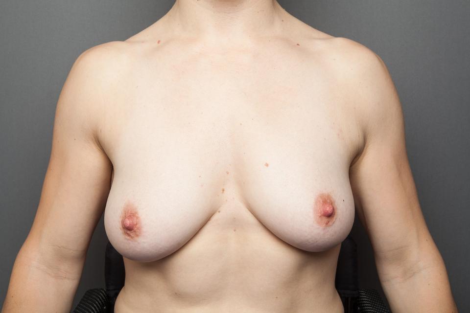 en porno rør brystoperation