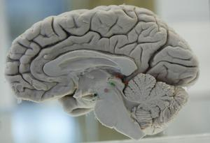 A human brain is on display at the Museum of Neuroanatomy, also known as the Brain Museum, at the University at Buffalo in Buffalo, N.Y., Friday, Oct. 29, 2010. The museum holds more than 80 specimens showing the structure of the brain from different angles. The museum is used by medical students and research scholars and is open to the public. (AP Photo/David Duprey)