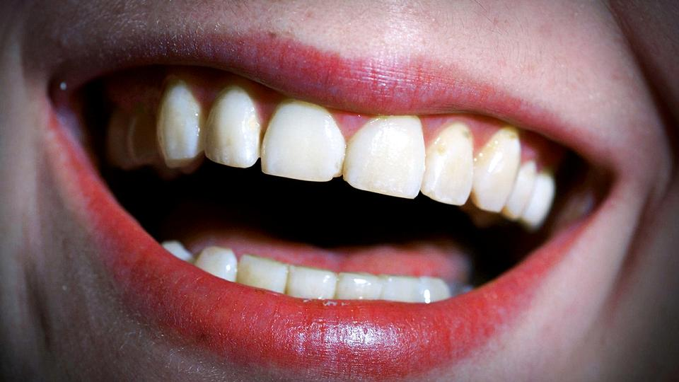 mit tandkød bløder