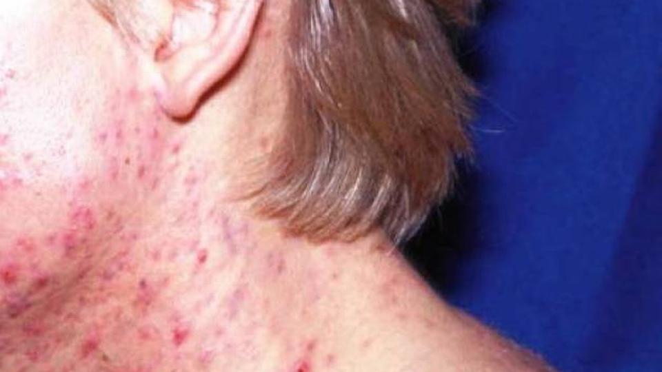 tetracyklin acne behandling