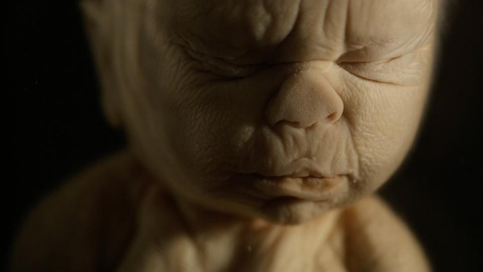 c6c270123 Sælsom samling 250 år gamle børn og fostre ligger på glas i ...