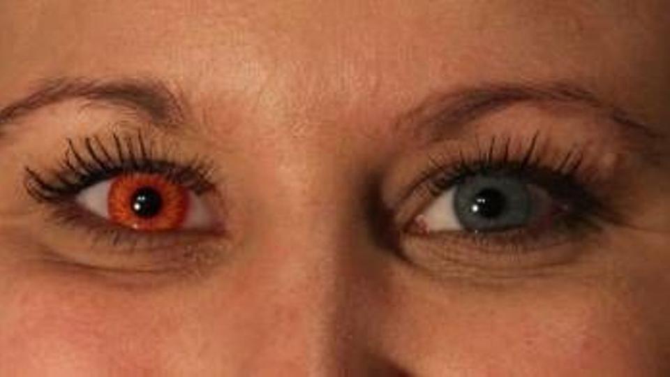 7d779a27692d Øjenlæger advarer mod at bruge farvede og mønstrede linser - politiken.dk