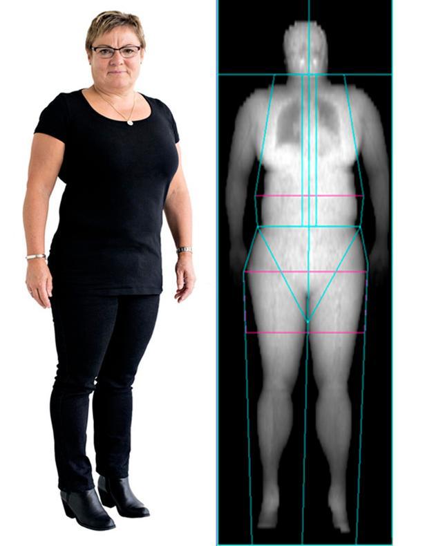 mave fedt kvinder dansk ved